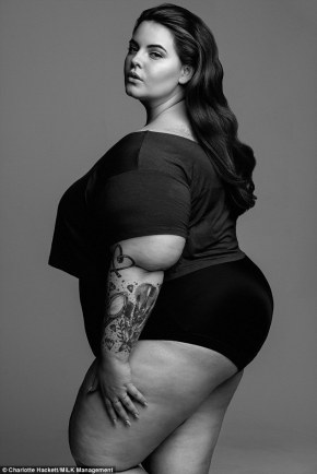 Fat shaming doesn't work and nor does it needto